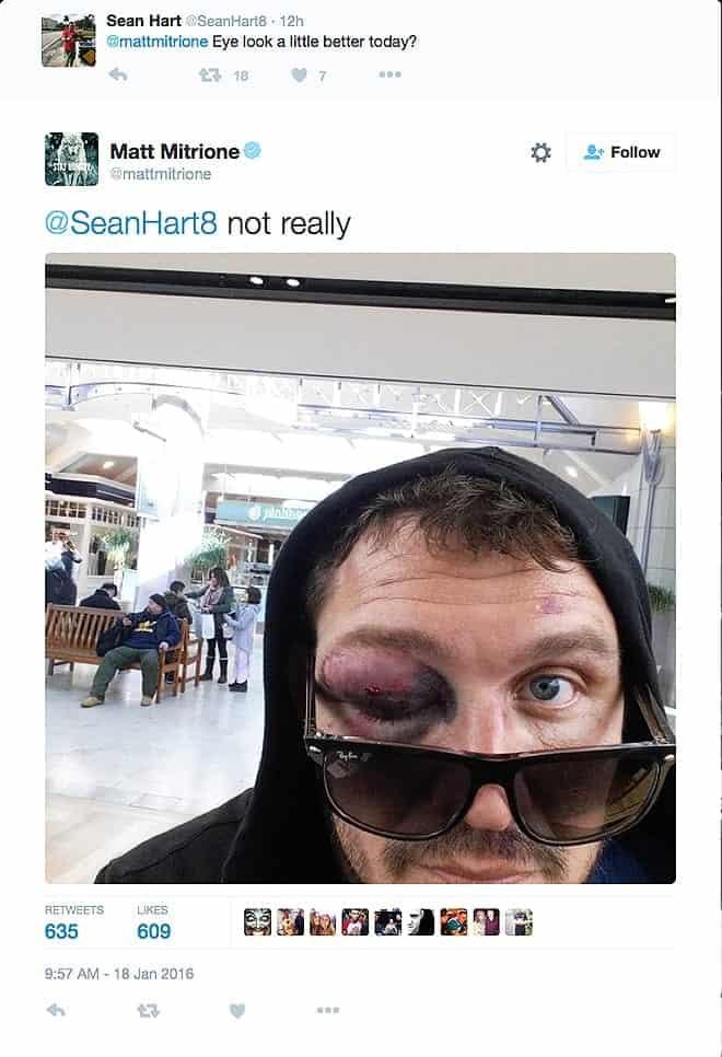 Who needs an orbital bone, anyway? [Twitter screenshot]